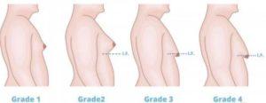 Gynecomastia Grading
