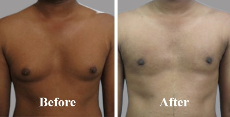 Large Gynecomastia India Before After Photo