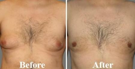 Unilateral Gynecomastia Before After