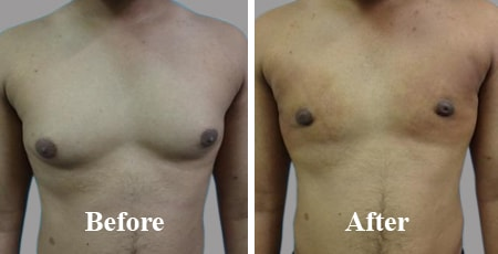 Bilateral Gynecomastia Before After