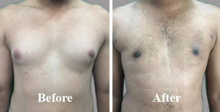 Gynecomastia Male Chest Reduction India Before After Photo
