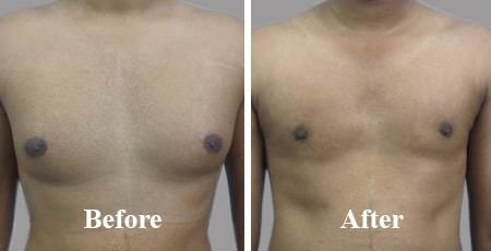 Gynecomastia Results: Before and after images for Massive Weight loss, grade 1, 2, 3, Puffy Nipple, Adolescent, Pseudo, Adult, Pure Glandular,