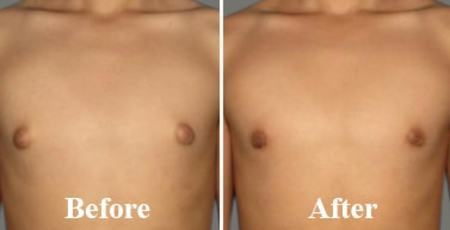 View before and after photos of gynecomastia surgery procedures performed by members of the American Society of Plastic Surgeons.